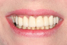 Female Smile Makeover - After