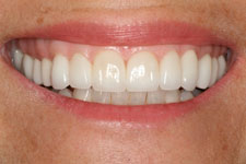 Veneers & Crowns - After